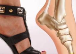 لكى سيدتى … 6 طرق للتغلب على ألم القدمين بعد ارتداء الكعب العالى