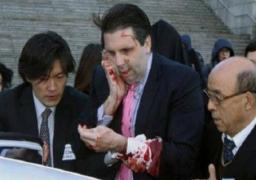 """بعد تعرضه لهجوم بسكين كوريا الشمالية تحذير السفير الأمريكي في سول من """"هجوم أكبر"""""""